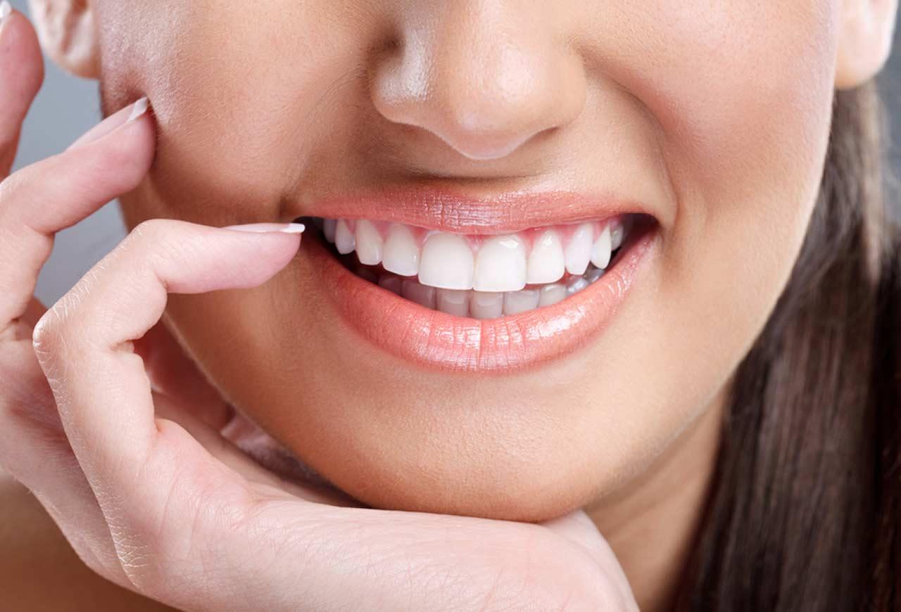 Fehér Dent