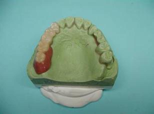Protézisek, amelyek termoplaszt műanyagból készülnek