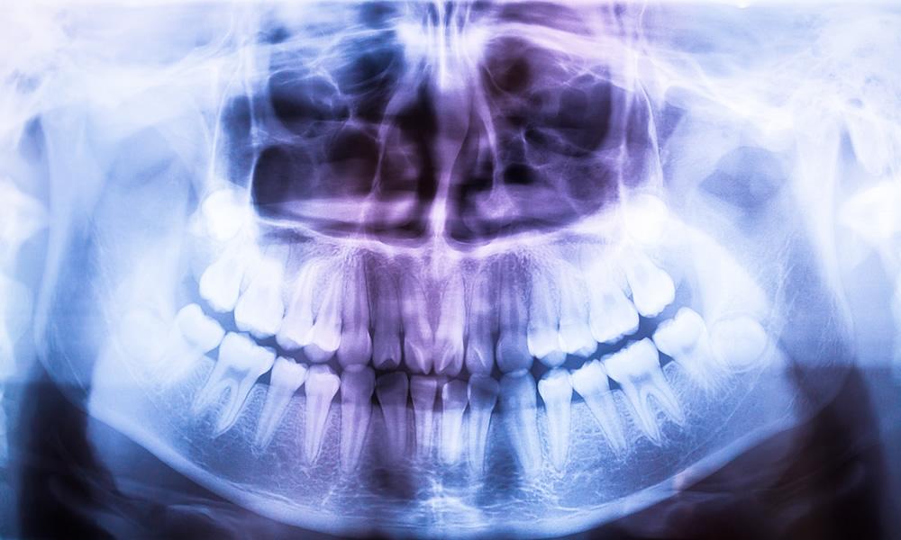 Fogászati röntgen a Fehér Dent Esztétikai Fogászatnál!