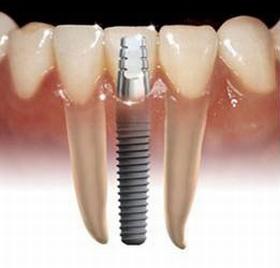 Mennyi ideig tölti be funkcióját az implantátum?