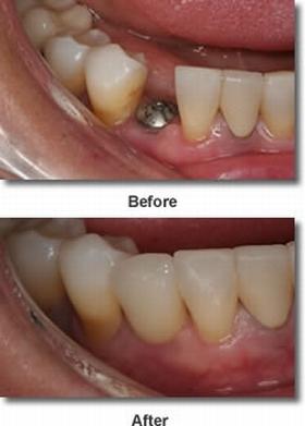 rossz lehelet az implantátum behelyezése után