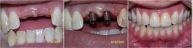 Jár-e kockázatokkal az implantációs műtét?