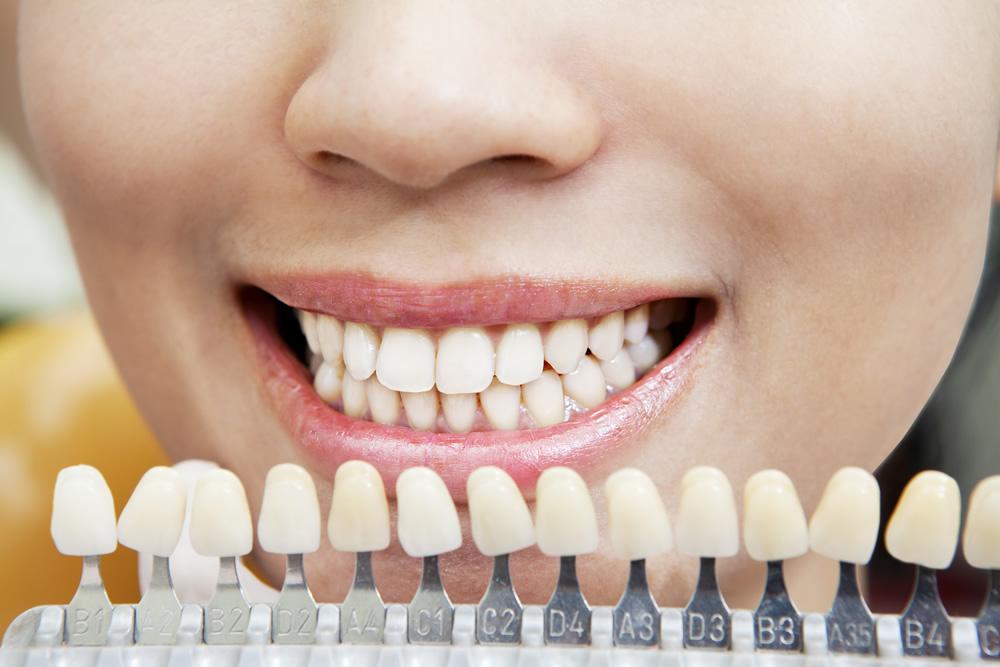 A fogfehérítés két formája a rendelői- és az otthoni fogfehérítés