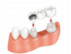 Több foghiány pótlása implantátummal
