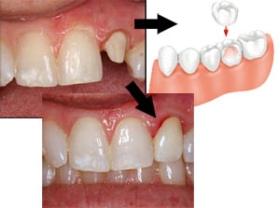 Egy foghiány pótlása implantátummal