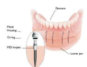 Implantátumokra készülő különféle pótlások